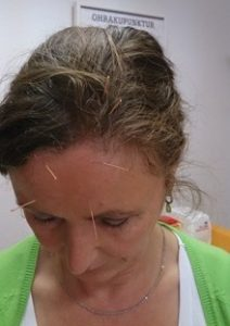 Schädel-Akupunktur nach Yamamoto Kirsten Schümann Leichlingen